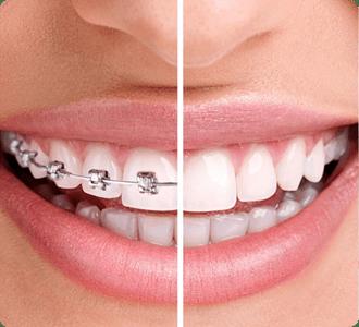 Orthodontic Braces | Grace Family Dental | Airdrie Dentist