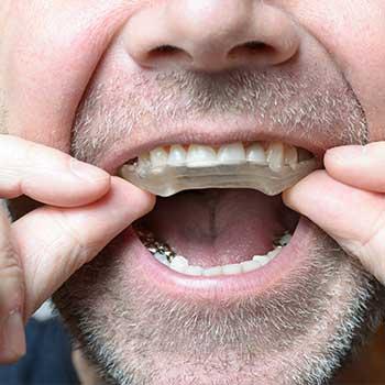 Dental Night Guard | Grace Family Dental | Airdrie Dentist