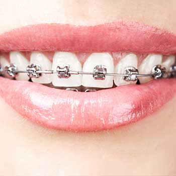 Metal Braces | Grace Family Dental | Airdrie Dentist