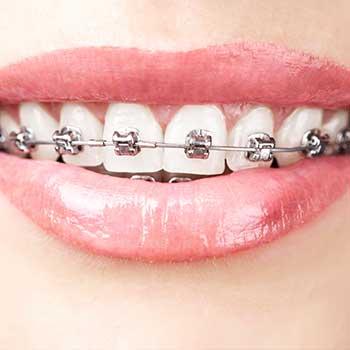 Metal Braces | Grace Family Dental | Airdrie Dentist