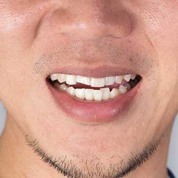 Orthodontics | Grace Family Dental | Airdrie Dentist