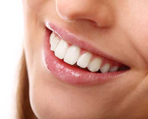 Porcelain Veneers | Grace Family Dental | Airdrie Dentist