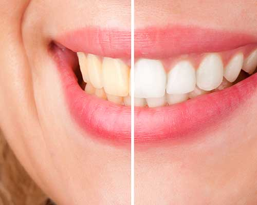 Teeth Whitening | Grace Family Dental | Airdrie Dentist